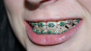 appareil dentaire enfant 300x169 - Accueil